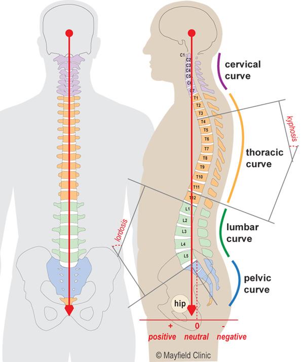 PE-scoliosis_Fig1.jpg